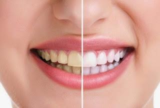 memutihkan gigi Manfaat Mengagumkan dari Buah Anggur Untuk Kecantikan Tubuh